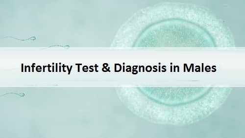 Infertility Diagnosis in Males